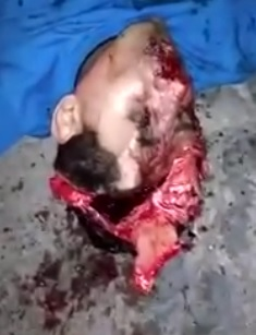 Head is Cracked Open Oozing Brain
