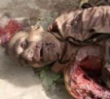 Man Killed by His Own Dog (2 camera angles + pics)