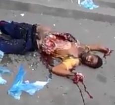 Man Detonated by Grenade Accidentally .