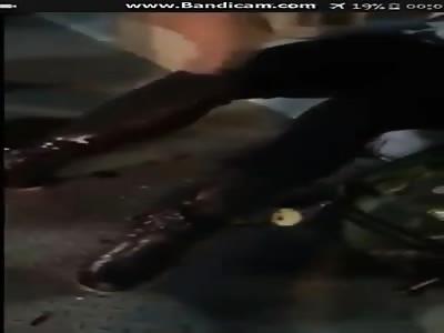 bleeding legs