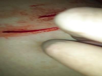 Girl Cut her Leg