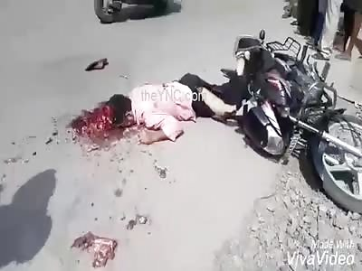 Motorbike Accident..