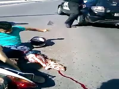 Motorcycle rider loses leg