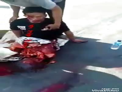 Man loses legs in accident
