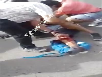 man screams in pain when he sees his knee broken