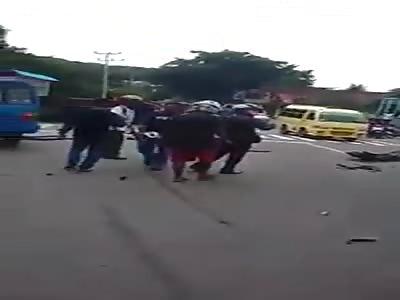 MAN LOSES HIS LEG IN ACCIDENT
