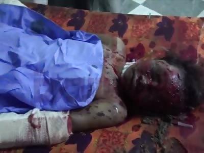Hodeidah atack airstrike