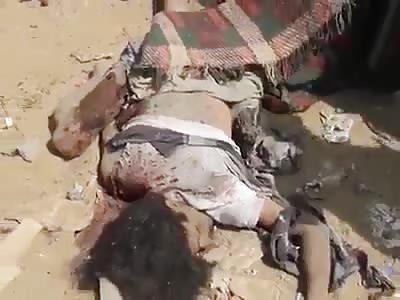 Horrible scene after Saudi attack on yemen
