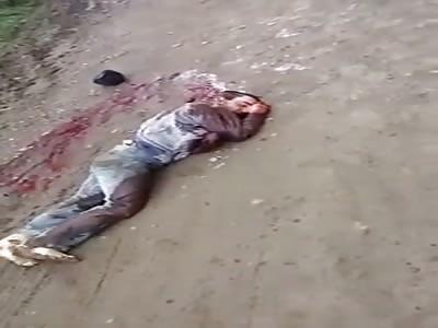 Atack with machete man cut arm
