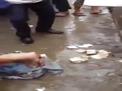 Man loses leg in accident