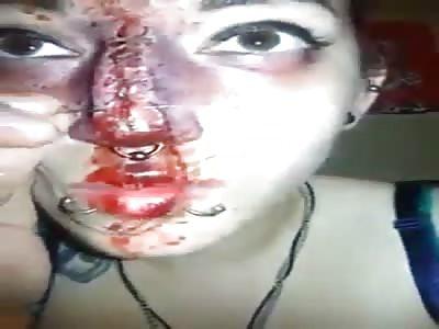 mutilation girl