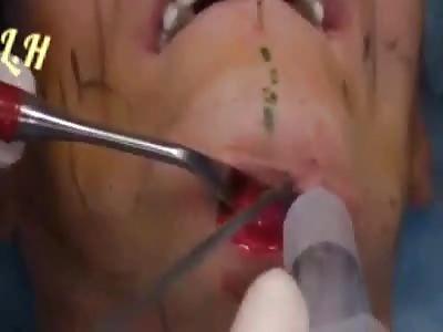 Eatetic surgery