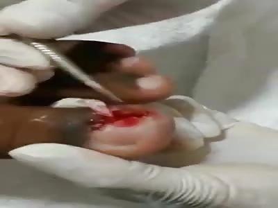 Gross - Maggots dug out of womans big toe