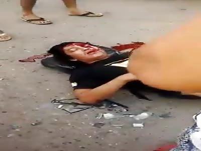 Mans head bleeding all over the street