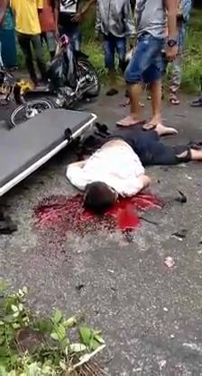 Motorcyclists Head Got Cracked Open