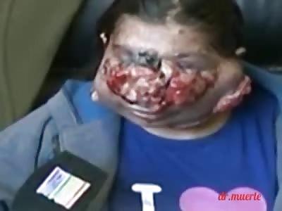 strange disease on a woman's face