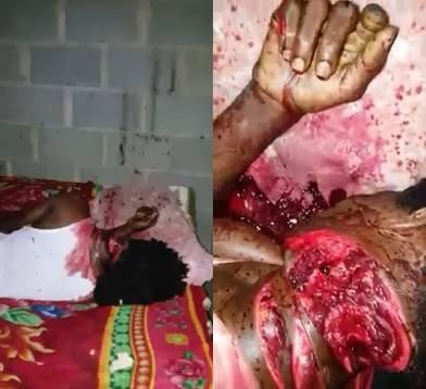 Haitian Man Killed with Machete