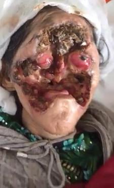 Creepy: Floating Eyeball in Faceless Woman...Still Alive!?