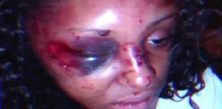 Woman Beaten by a Man she Just Met on Instagram
