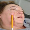 Female Detroit Math Teacher has Pencil Stuck through her Face by 6'5
