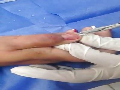 EWWW Removing a Nail