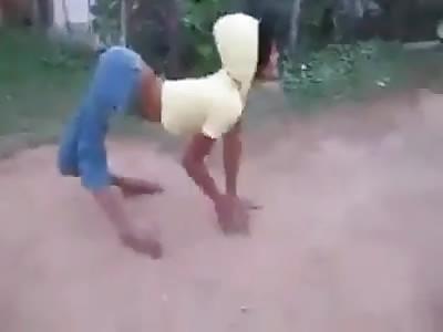 Bizarre Deformed Woman Doing a Super Twerk Dance