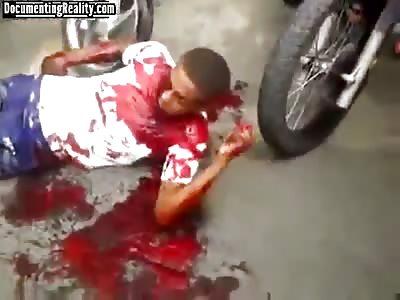 Cop shoots 16 year old kid   Dies choking on his own blood